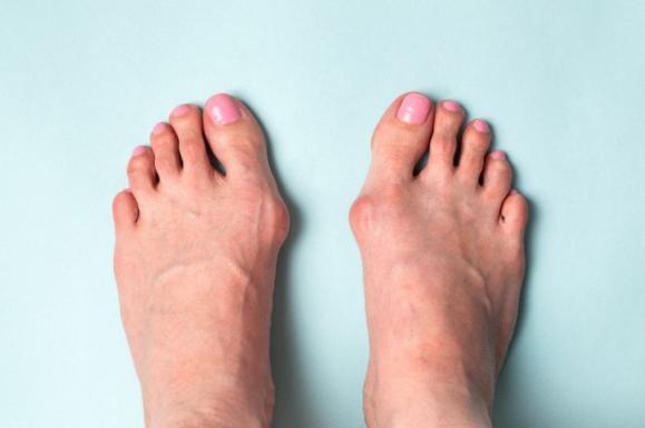 pathologie du pied