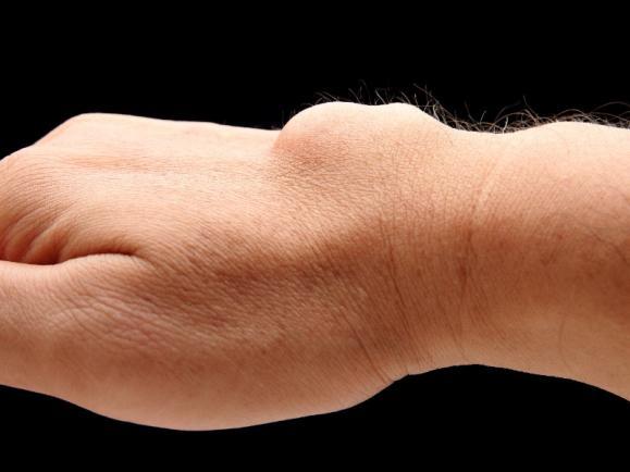 kyste arthro-synovial